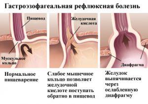 Активная выработка желудочного сока провоцирует чувство жжения