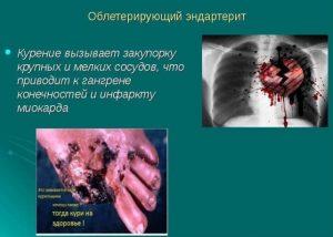 Картинки о вреде курения для подростков