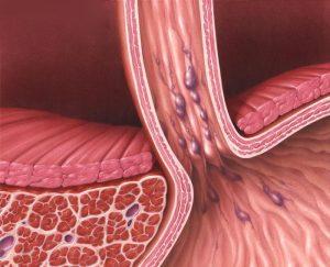 Кровотечение из варикозных расширенных вен