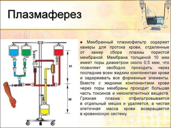 Мембранный плазмаферез
