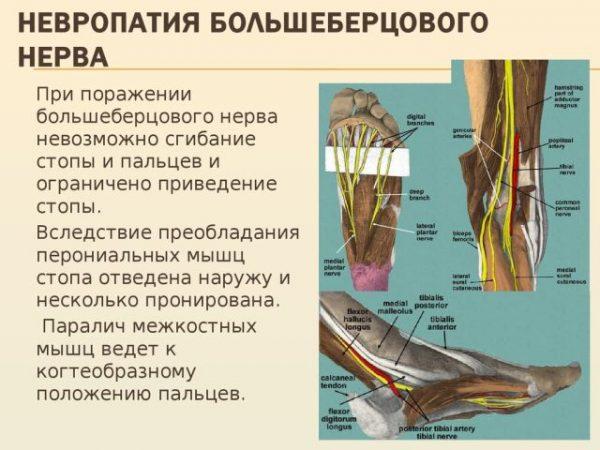 Нейропатия большеберцевого нерва