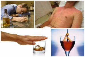 Непереносимость спиртного