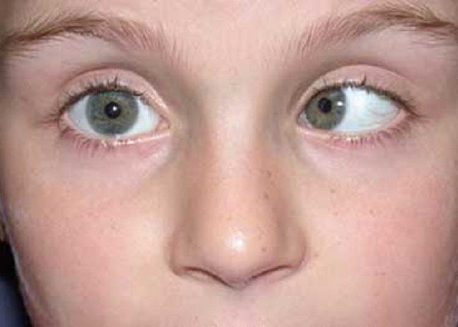 Непроизвольные колебания глазных яблок
