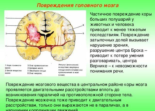 Обширное поражение коры головного мозга