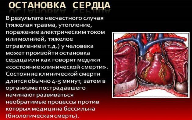Остановка сердца является летальным исходом при употреблении амфетамина