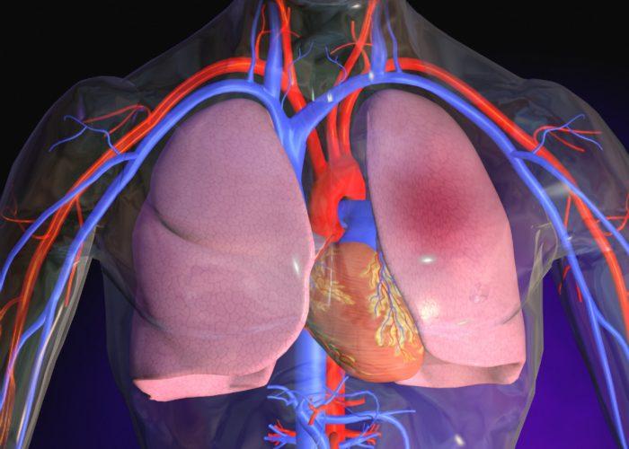 Отек легких, спровоцированный повреждением мембран клеток