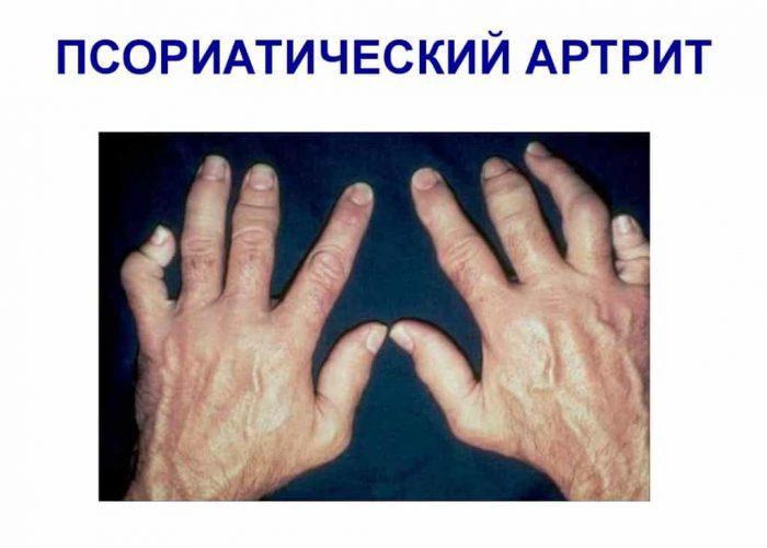 Поражение суставов при псориатическом артрите