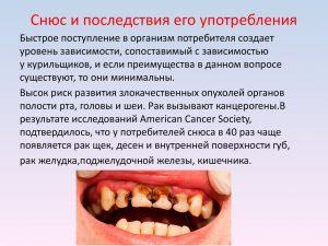 Последствие употребления жевательного табака