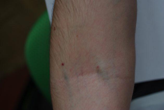 Появляются следы от уколов на руке