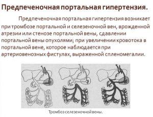 Предпеченочная портальная гипертензия
