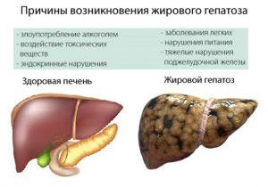 Причины развития алкогольного гепатоза