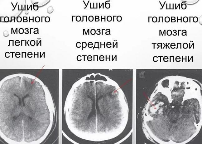 Проблемы с центральной нервной системой