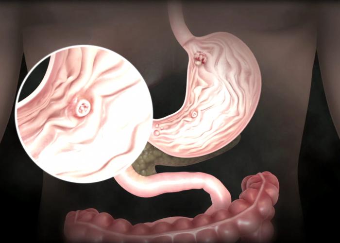 Раковых опухолей желудка