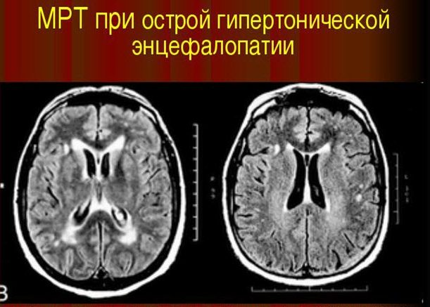 Развитие энцефалопатии