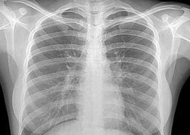 Рентгенограмма груди