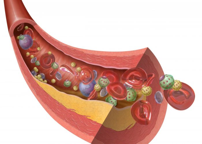 Рост количества холестериновых бляшек