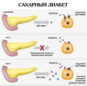 Сахарный диабет - причина полинейропатии