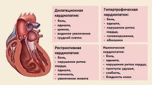 Симптоматика кардиопатии