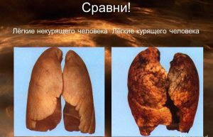 Вот так курение сказывается на лёгких