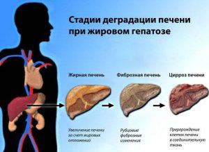 Стадии жирового гепатоза