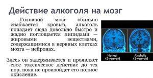 Токсическое поражение мозга алкоголем