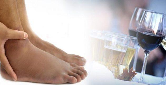 Употребление спиртного при варикозе