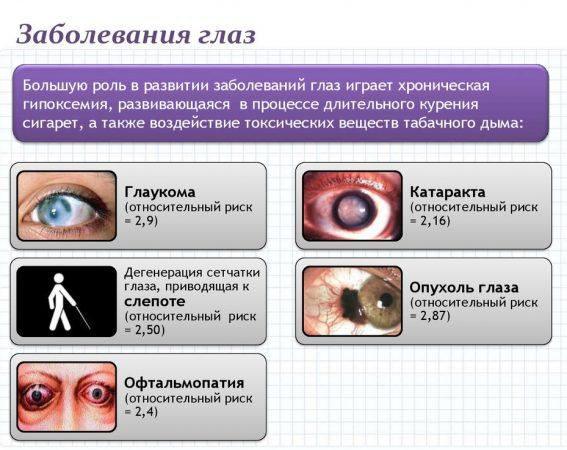 Заболевания глаз,вызваны длительным курением