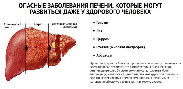 Опасные заболевания печени