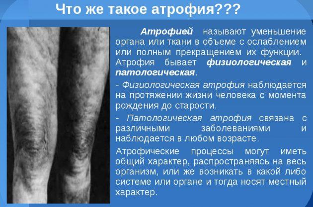 Атрофия мышечной ткани
