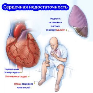 При сердечной недостаточности Виагра противопоказана