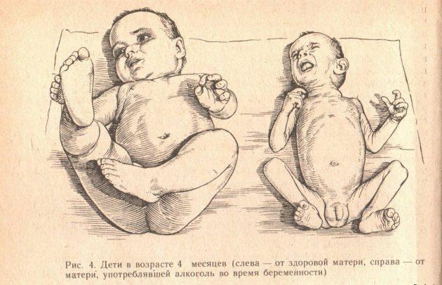 Абстинентный синдром у новорожденного