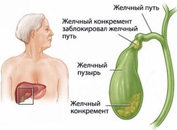 Алкоголизм при воспалении желчного пузыря