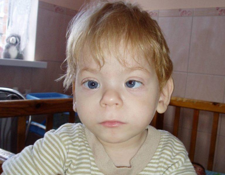 Алкогольный (фетальный) синдром у детей