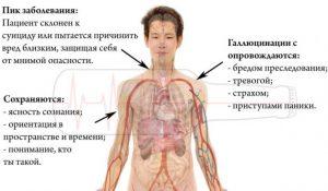 Алкогольный параноид - симптомы
