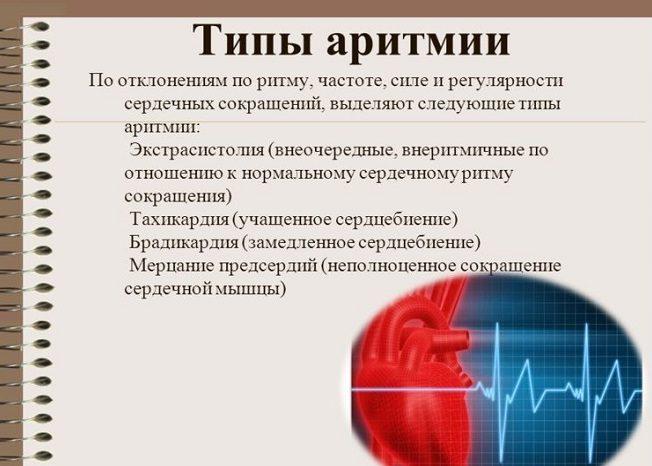 Аритмия