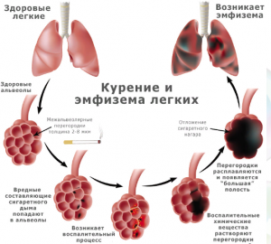 Эмфизема от курения