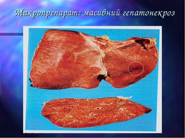 Гепатонекроз