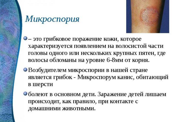 Микроспория