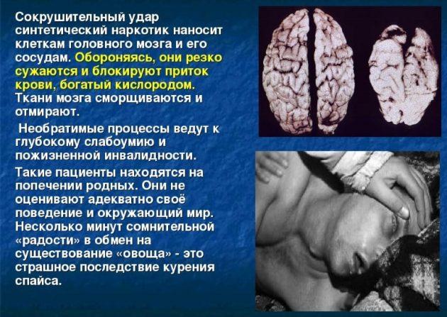 Последствия от синтетических наркотиков