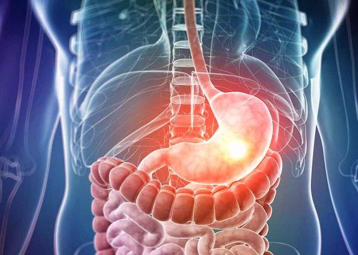 Повышение выработки слизи в желудке