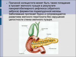 Причина холецистита