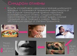Признаки синдрома отмены