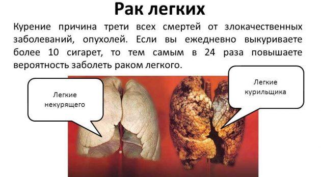 Рак легких от сигарет