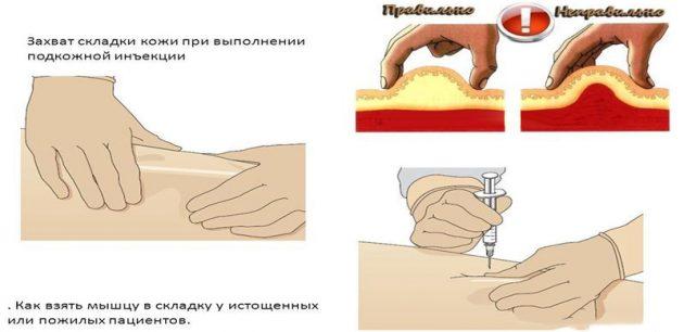 Схема выполнения инъекции Аллокином-Альфа