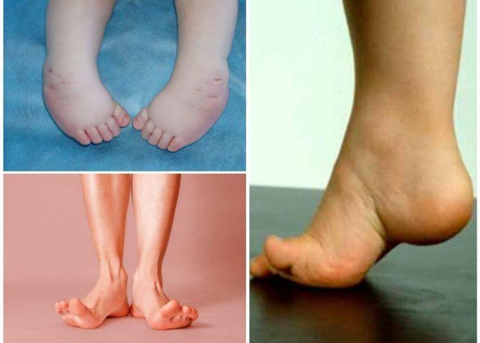 Укороченные стопы и пальцы
