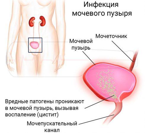 Влияние алкоголя на мочевой пузырь