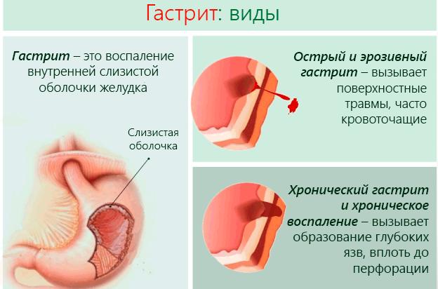 Анацидный гастрит