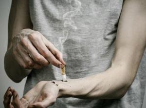 Самопроизвольное повреждение кожи - один из признаков патомимии