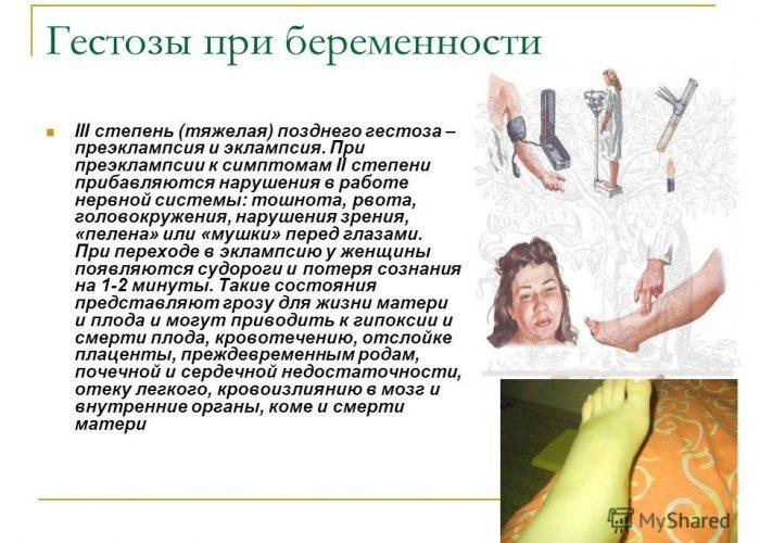 Эклампсия беременных