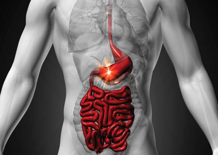 Хроническом глюкозно-галактозном расстройстве процессов переваривания